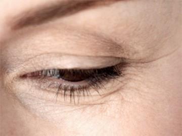 морщины вокруг глаз - morschiny vokrug glaz